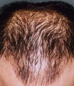 育毛開始2ヶ月後